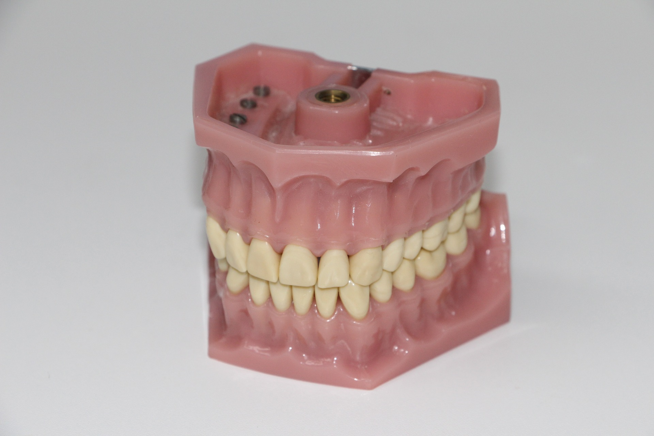 dentures-1514697_1920.jpg