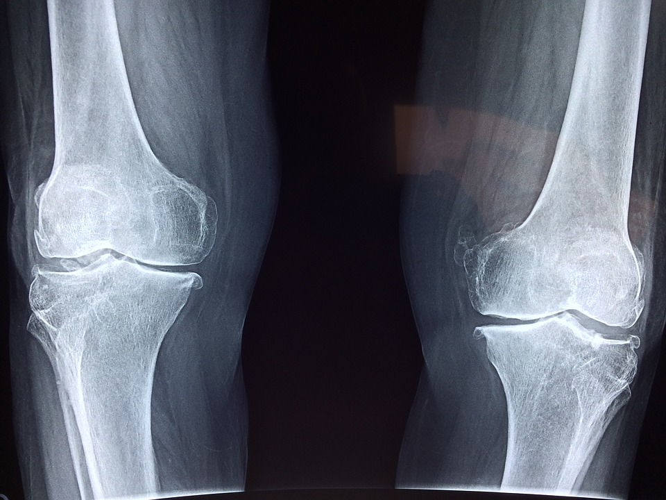 knee-2253047_960_720.jpg